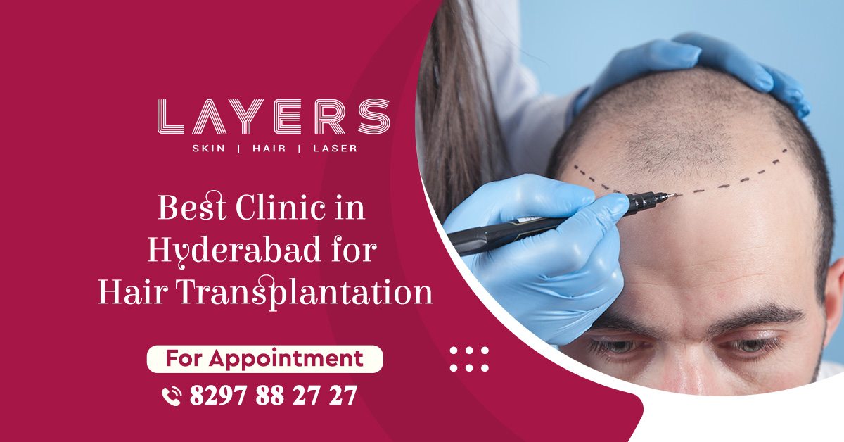 Best Clinic in Hyderabad for Hair Transplantation