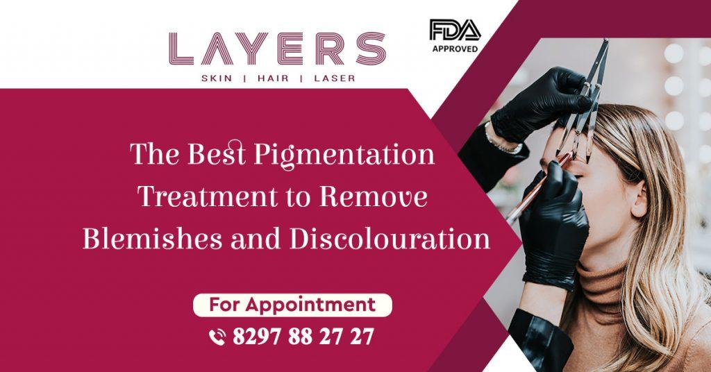 best treatment for pigmentation